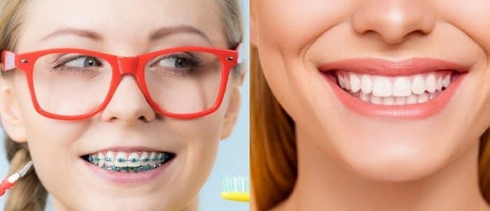 ارتودنسی بهتر است یا کامپوزیت دندان