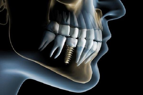 افزایش عمر ایمپلنت دندان