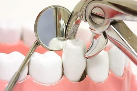 انواع روش های کشیدن دندان