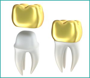 انواع روکش های دندان؛قیمت، عوارض و مراحل آنها
