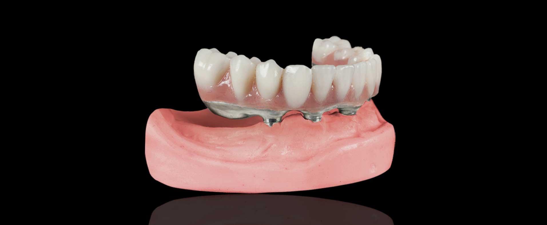 انواع پروتزهای متحرک دندان