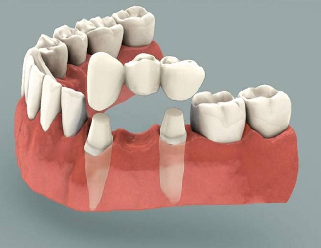 انواع پروتز های ثابت دندان