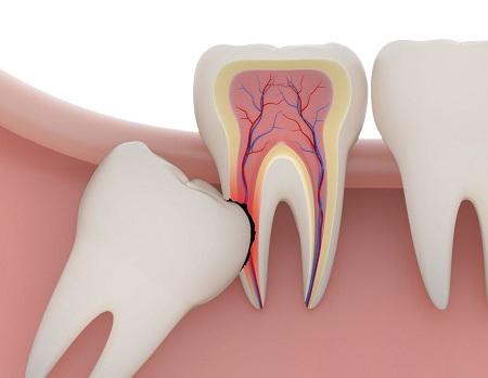 اگر دندان عقل را نکشم، چه اتفاقی میافتد؟