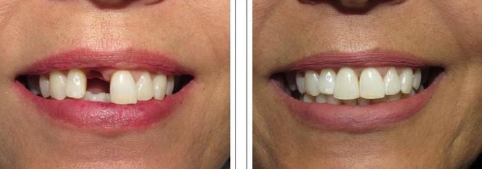ایمپلنت دندان جلو برای چه کسانی مناسب است و چقدر طول میکشد؟
