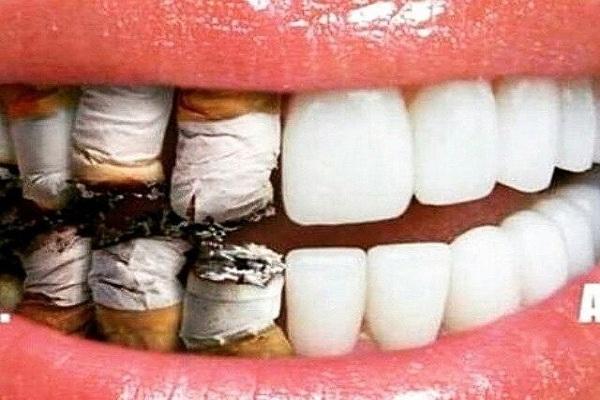 ایمپلنت دندان در افراد سیگاری