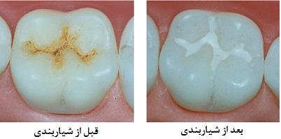 فیشر سیلندر دندان