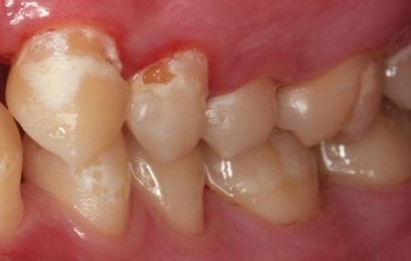 بررسی وجود عارضههای دندان قبل از اصلاح طرح لبخند