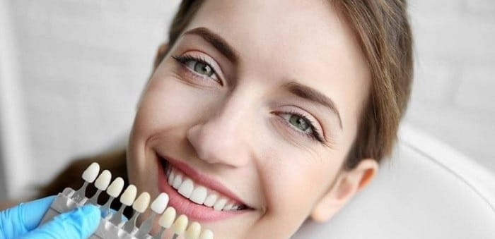 تفاوت کامپوزیت و لمینت دندان