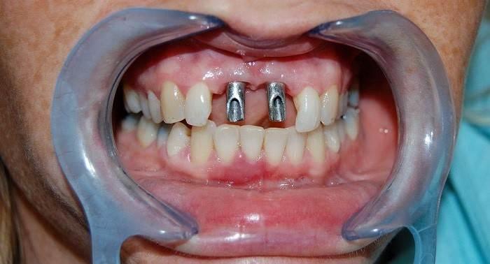 جراحی ایمپلنت دندان جلو