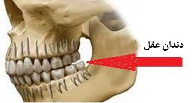 جراحی و کشیدن دندان عقل نهفته درد و مراقبت بعد از آن