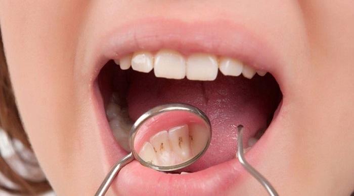 جرم و پلاک دندانی
