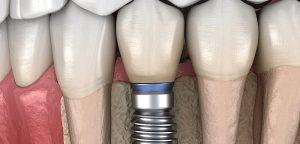 جوش نخوردن ایمپلنت دندان