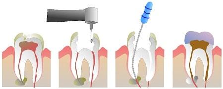 درمان دندان آبسه کرده با عصبکشی یا کانال ریشه