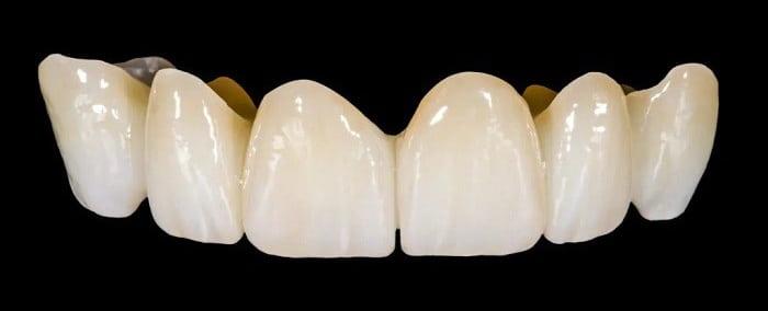 روکش زیرکونیوم دندان چه مزایا و کاربردهایی دارد؟