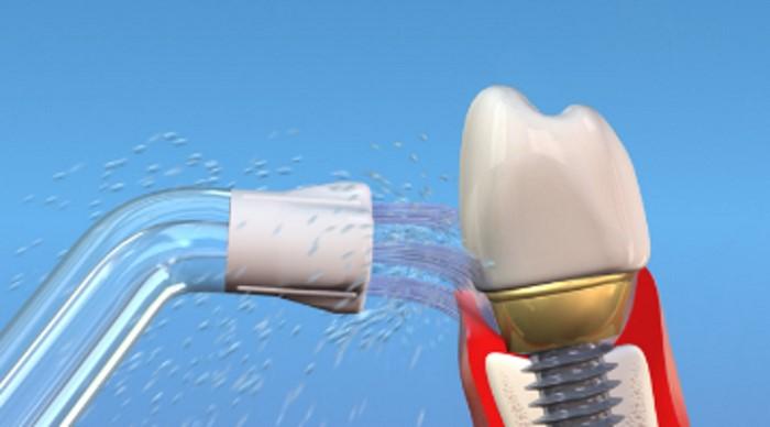 شستشوی لثه با شستشو دهندههای دهان یا Oral Irrigator