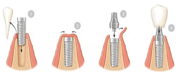 شیوه انجام کاشت دندان با ایمپلنت