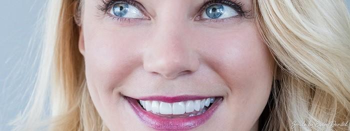 طبیعیترین راهحل برای از دست دادن دندانهای جلو