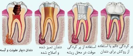 عصب کشی دندان چگونه است؟