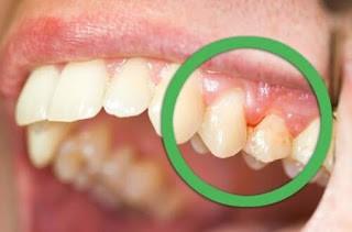 عوارض ناشی از پلاک دندانی