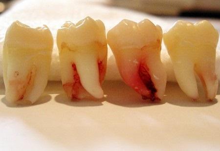 عوارض کشیدن دندان