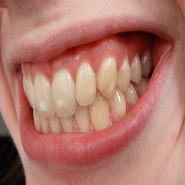 لکه های سفید دندانی