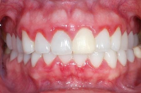 مشکلات دهان و دندان در دوران بارداری