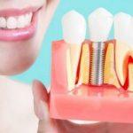 نگهداری ایمپلنت دندان نکاتی درباره تغذیه و بهداشت بعد ایمپلنت