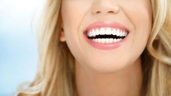 هزینه ایمپلنت دندان در مقابل لمینت چقدر است؟