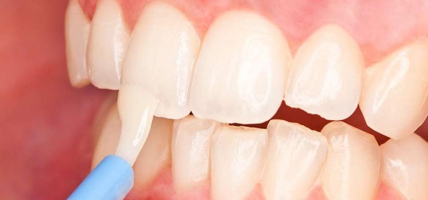 وارنیش دندان یا فلورایدتراپی در کودکان و بزرگسالان