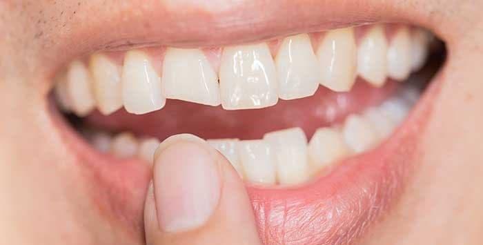 وجود لبپریدگی یا ترک دندان