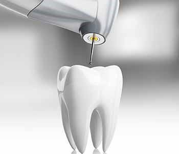 پس از درمان ظاهر دندان بیمار چگونه خواهد بود