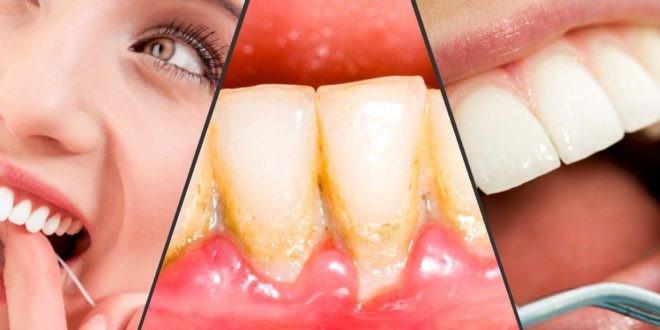 پیشگیری از جمع شدن پلاک دندانها