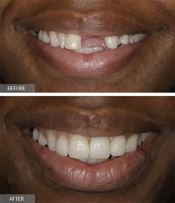 چرا از بین راههای دیگر برای جایگزینی دندان جلو، ایمپلنت دندان را انتخاب میکنیم؟