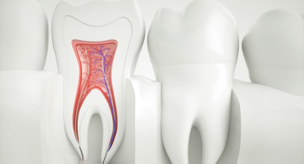 چگونه پس از عصب کشی میتوان از دندان مراقبت کرد؟
