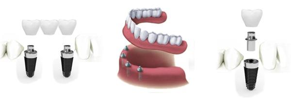 ایمپلنت در دندان پزشکی