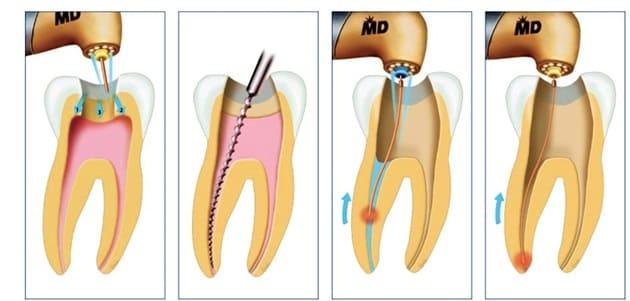 چرا عصب کشی دندان لازم و ضروری است؟